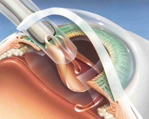 Процесс отсасывания катаракты во время проведения операции факоэмульсификации